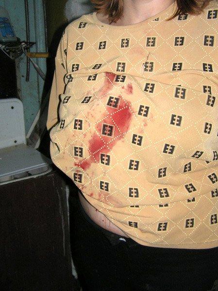 В Приморском районе многодетная мать едва не погибла от ножа пьяного соседа. Спасла дворовая собака (фото)., фото-1