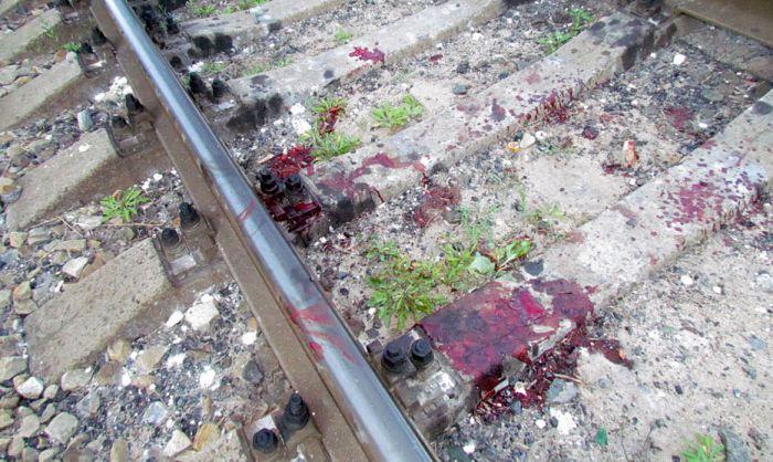 В курортной зоне Мариуполя поезд отрезал парню обе ноги (ФОТО), фото-6