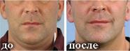 Альтернатива хирургической подтяжке лица - термолифтинг в Мариуполе!, фото-1
