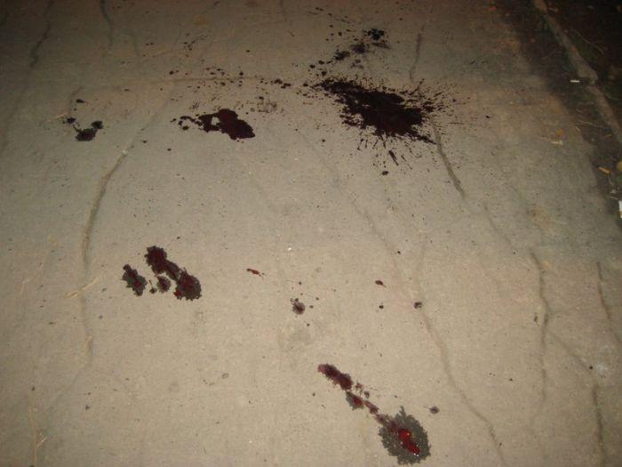 «Разборки» в  ночном Мариуполе. Раненный в сердце мужчина дошел до ближайшего кафе и упал там, лишившись чувств (ФОТО), фото-4