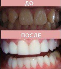 «Голливудская» улыбка, фото-1