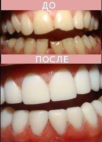 «Голливудская» улыбка, фото-2