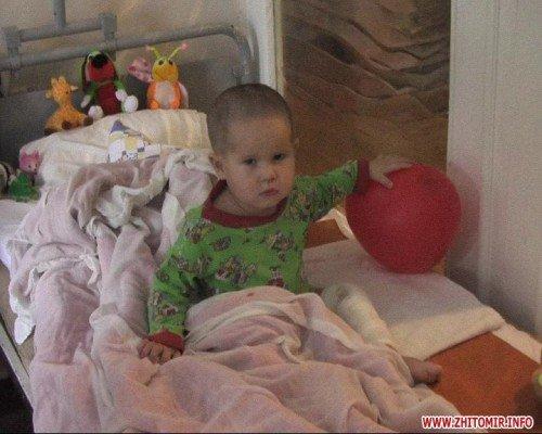 В Житомирской области родители бросили двухлетнего сына с ожогами из-за хозяйства (ФОТО), фото-2