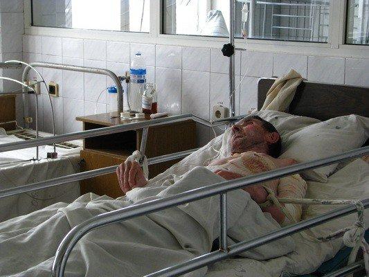 За окном растет минус, а в ожоговом - количество пациентов (ФОТО), фото-2