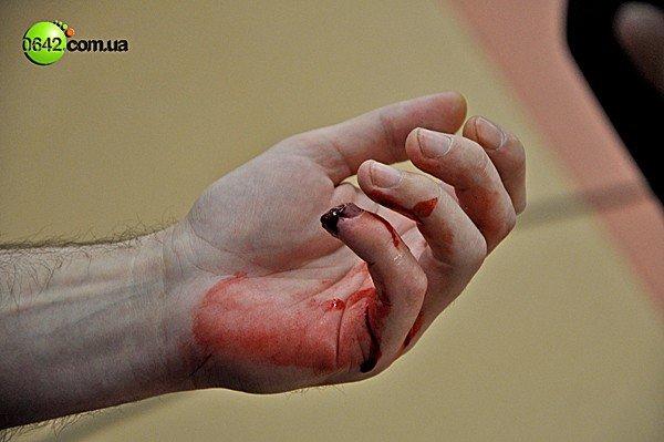 В Луганске на сессии горсовета пролилась кровь (ВИДЕО, ФОТО), фото-8