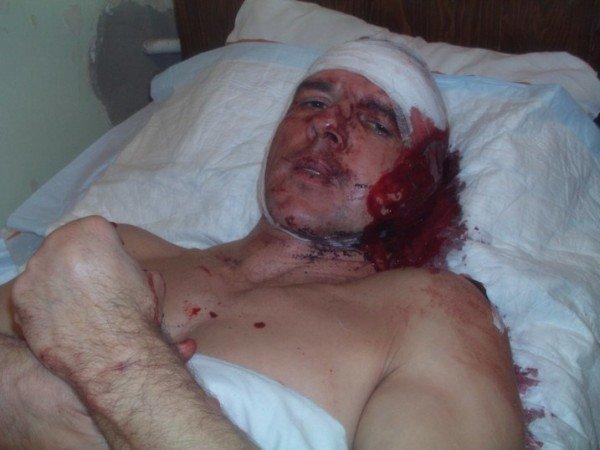 В МВД Крыма рассказали свою версию поножовщины с участием милиционера (ФОТО), фото-1