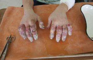 В Симферополе водитель маршрутки отморозил руки, меняя колесо (фото), фото-1