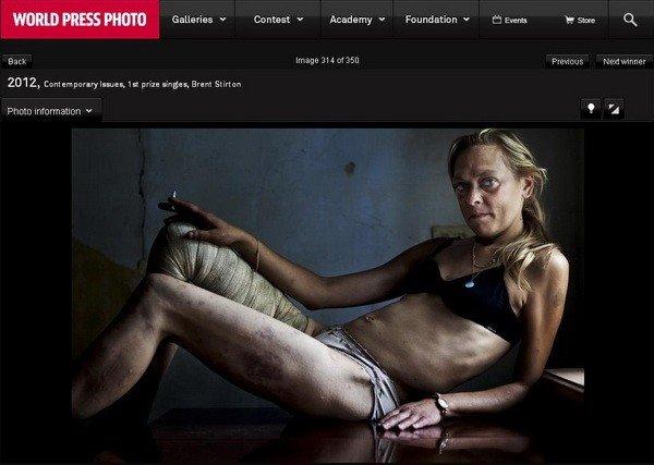 Криворожская наркоманка и проститутка взяла первое место в World Press Photo, фото-1
