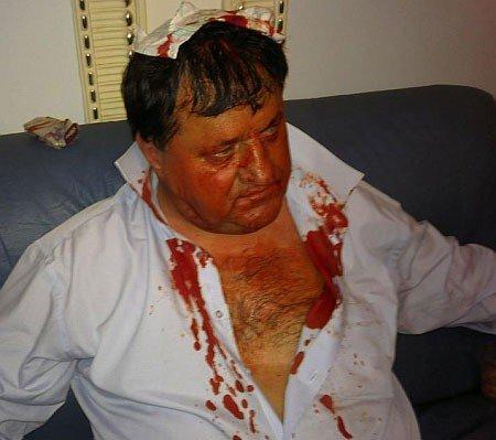 В Верховной Раде депутата  избили до крови  (фото, видео), фото-1
