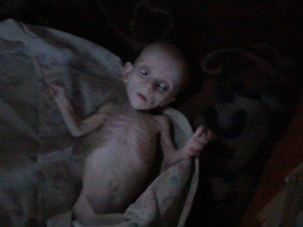 Шок! В Донецке родители-нелюди заморили голодом родного ребенка (ФОТО), фото-1