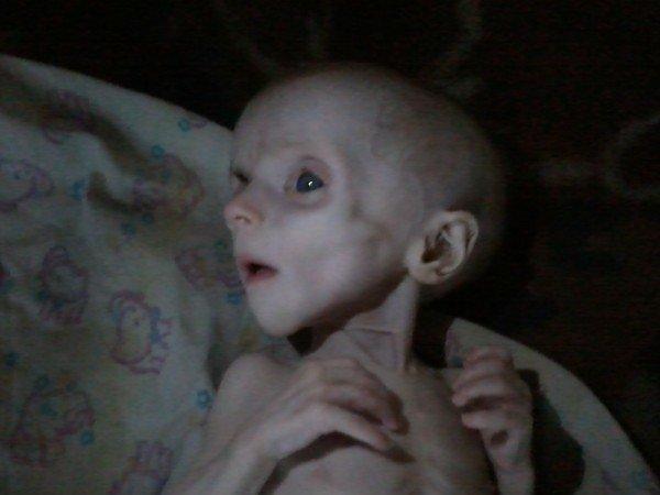 Шок! В Донецке родители-нелюди заморили голодом родного ребенка (ФОТО), фото-2