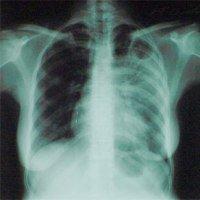 Мариуполь остается лидером по заболеваемости туберкулезом, фото-1