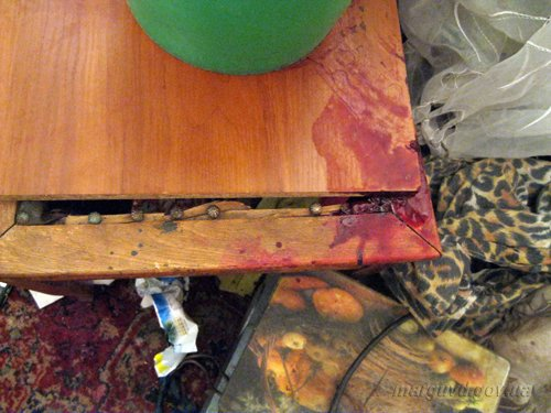 Не дождалась. В Мариуполе иностранец исполосовал ножом ухажера своей возлюбленной (ФОТО), фото-2