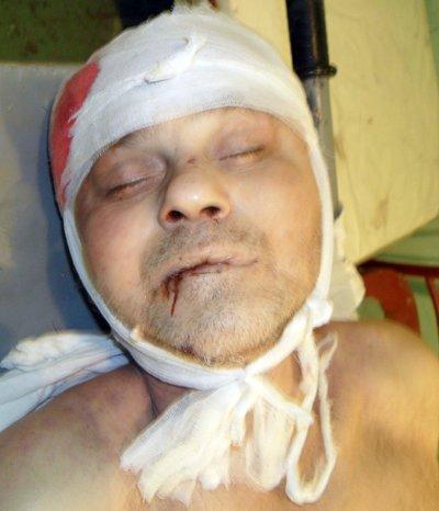 Милиция Мариуполя просит помочь установить личность погибшего мужчины, фото-1