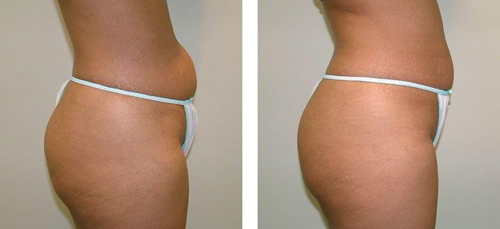 VelaShape2-before-after
