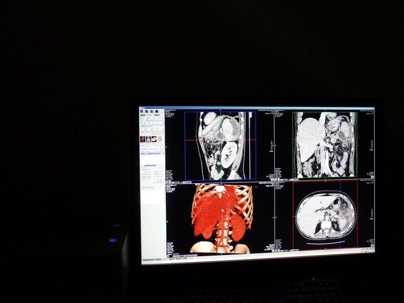 За подаренный Севастополю чудо-томограф платил не президент [фото] (фото) - фото 12