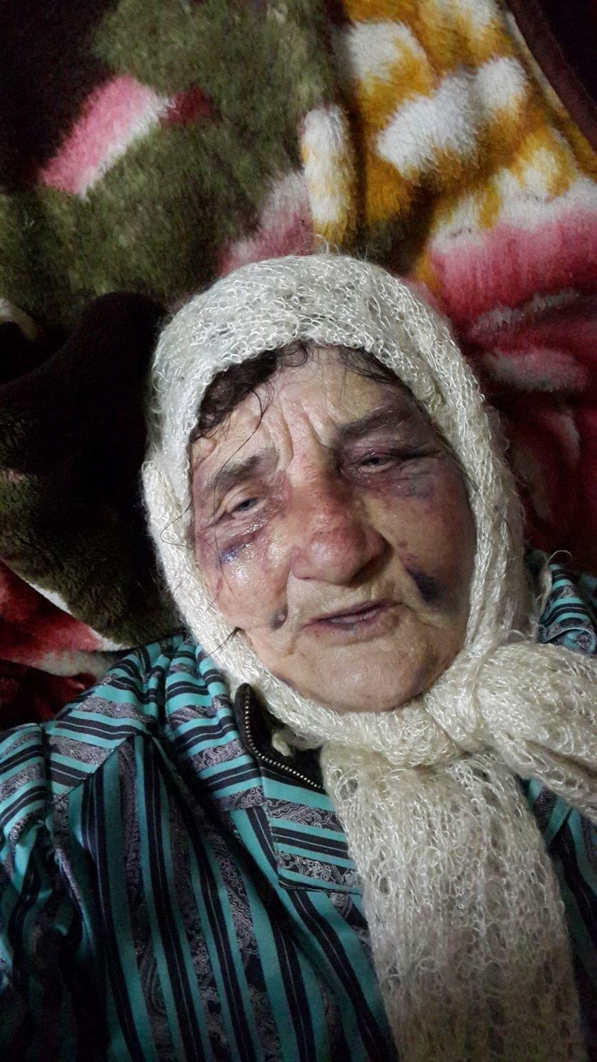 В Запорожье внук ищет извергов, избивших его 82-летнюю бабушку (ФОТО), фото-1