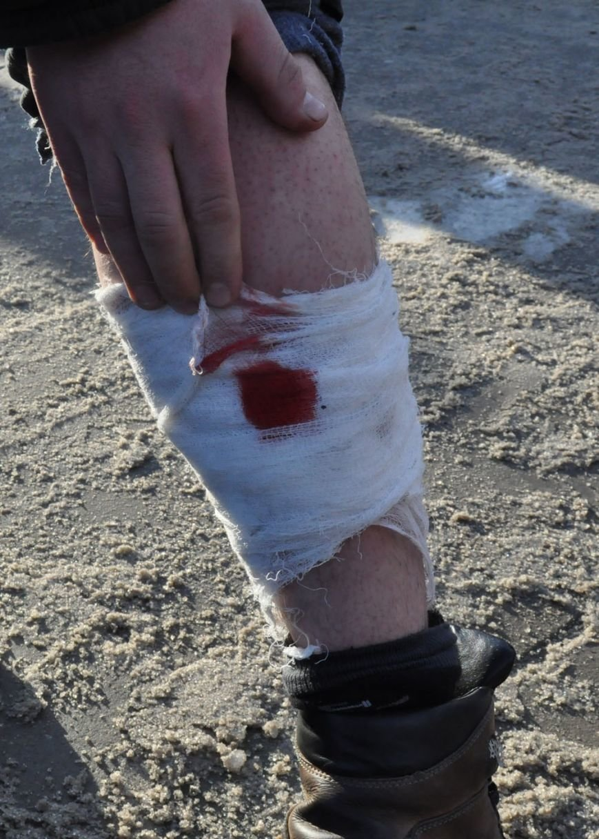 Под Запорожской обладминистрацией пострадало 3 человека (ФОТО, 18+), фото-1