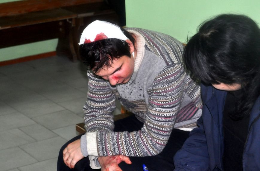 Парень рассказал как в Запорожье титушки ловили и избивали людей во дворах, фото-1