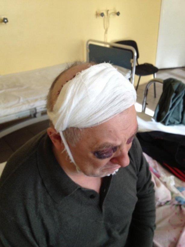 """Побитого """"Беркутом"""" євромайданівця з Тернопільщини виписали з лікарні з численними забоями і тріщиною в черепі (фото), фото-3"""