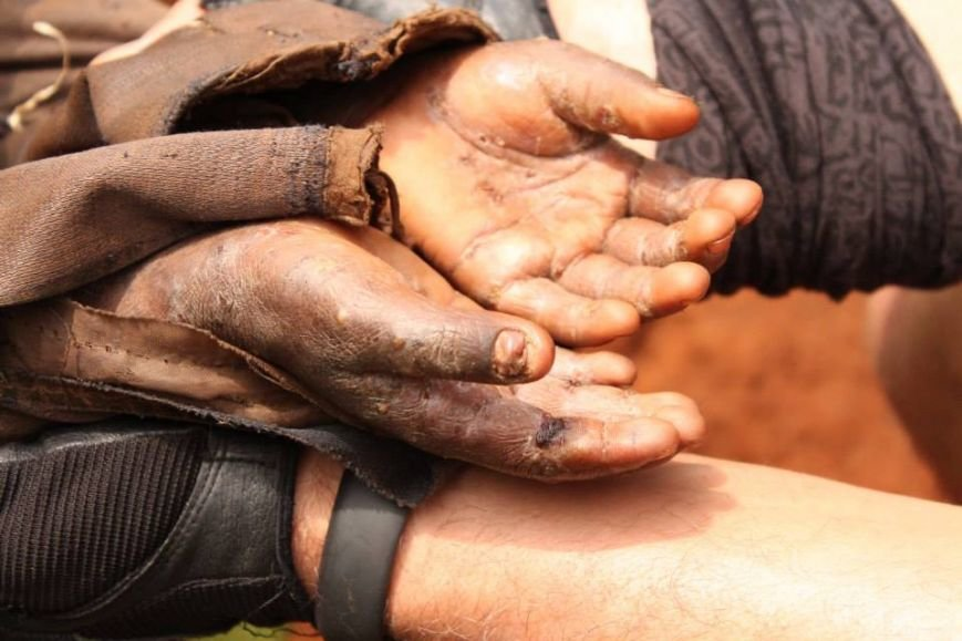 Мариупольцы в Африке спасли детей от смертельно опасного клеща (ФОТО), фото-5