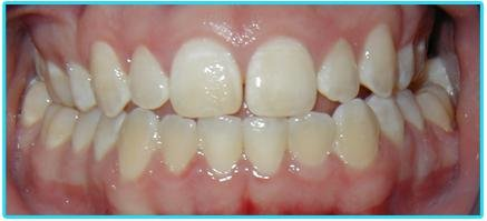 Отбелить зубы за 5 дней на дому – реальность!, фото-1