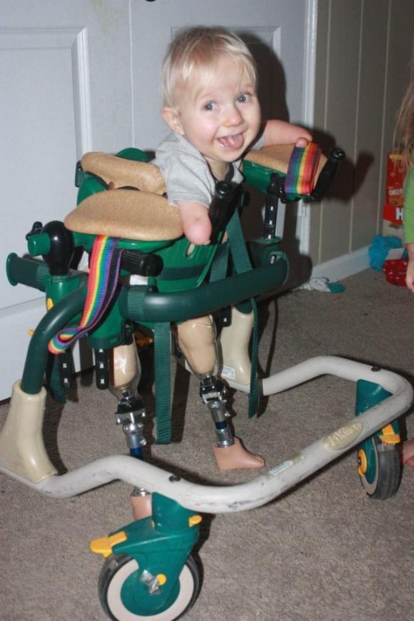 Маленький тернополянин, який народився без ручок і без ніжок, уже має протези, фото-1