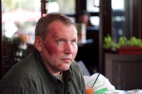 Сотник Майдана заявил об избиении. Милиция этот факт опровергает (ФОТО), фото-2