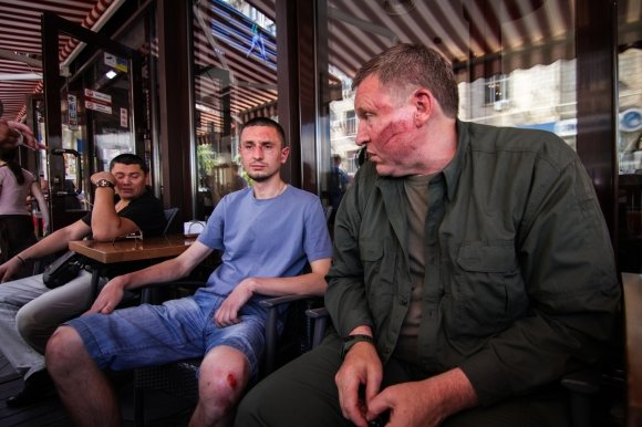 Сотник Майдана заявил об избиении. Милиция этот факт опровергает (ФОТО), фото-1