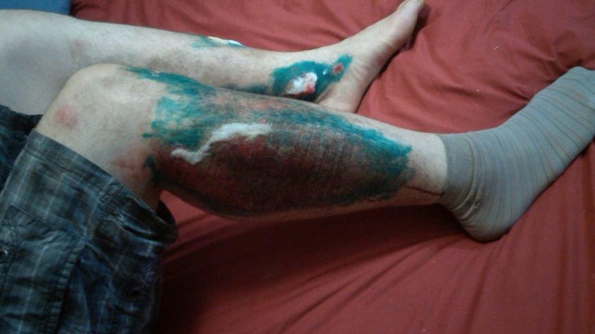 В Сумах сбитый велосипедист на Д. Коротченко требует резонанса и справедливости (ПИСЬМО+ФОТО), фото-4