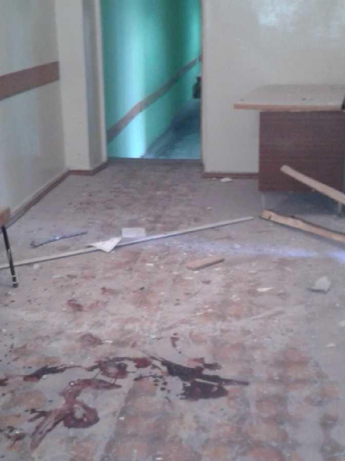 Луганская больница №8 пострадала от обстрела, тяжело ранены трое сотрудников (ФОТО), фото-4