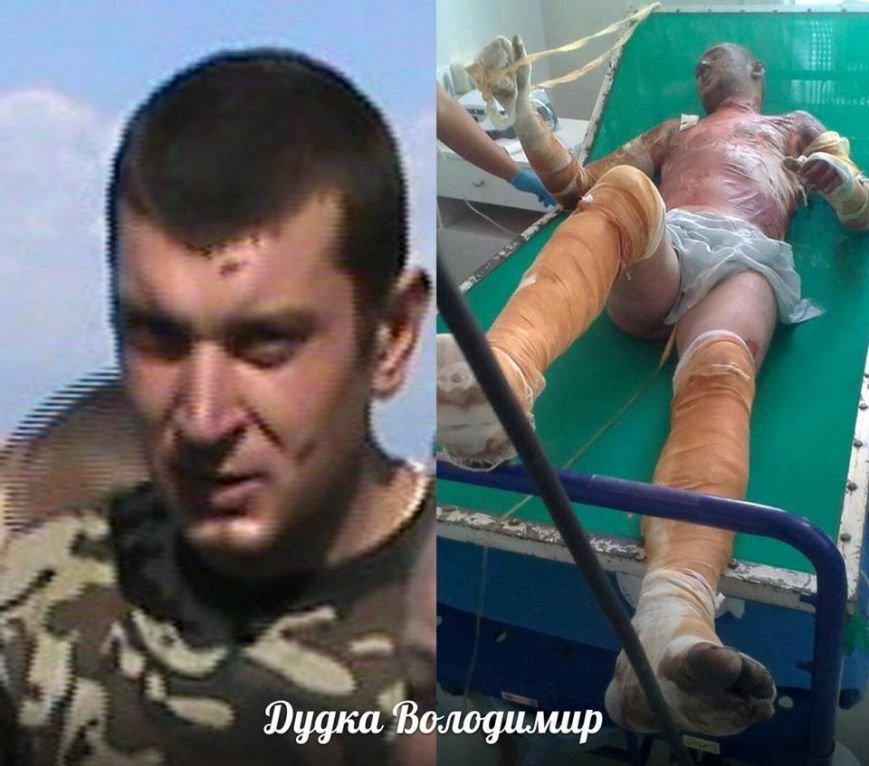 Выжившим солдатам 27-ого Сумского реактивного полка нужна помощь (ФОТО) ОБНОВЛЕНО, фото-3
