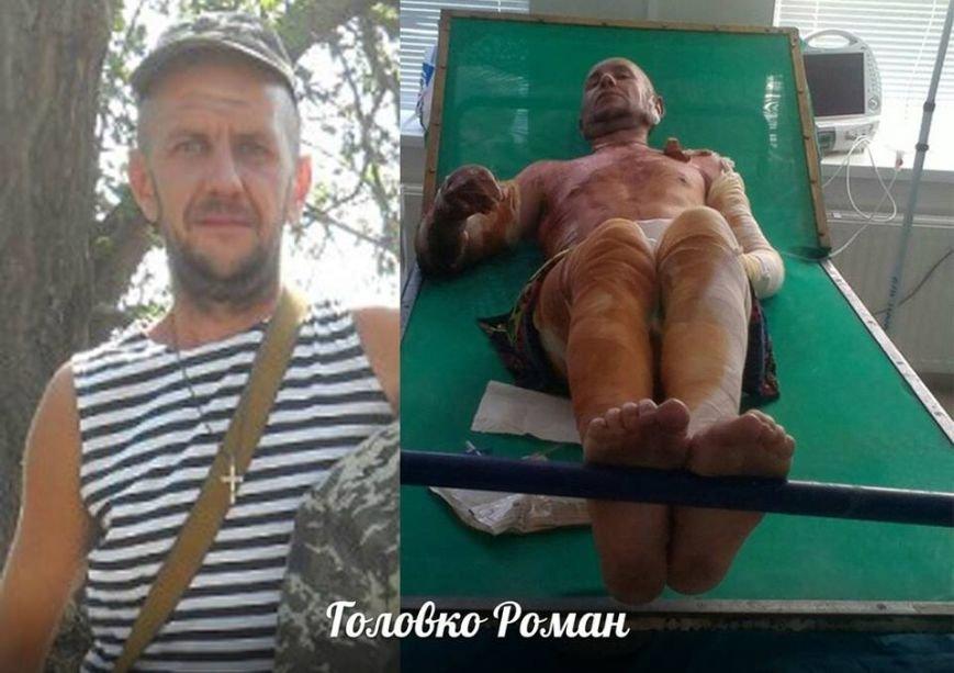 Выживший солдат 27-ого Сумского реактивного полка нуждается в помощи (ФОТО), фото-2