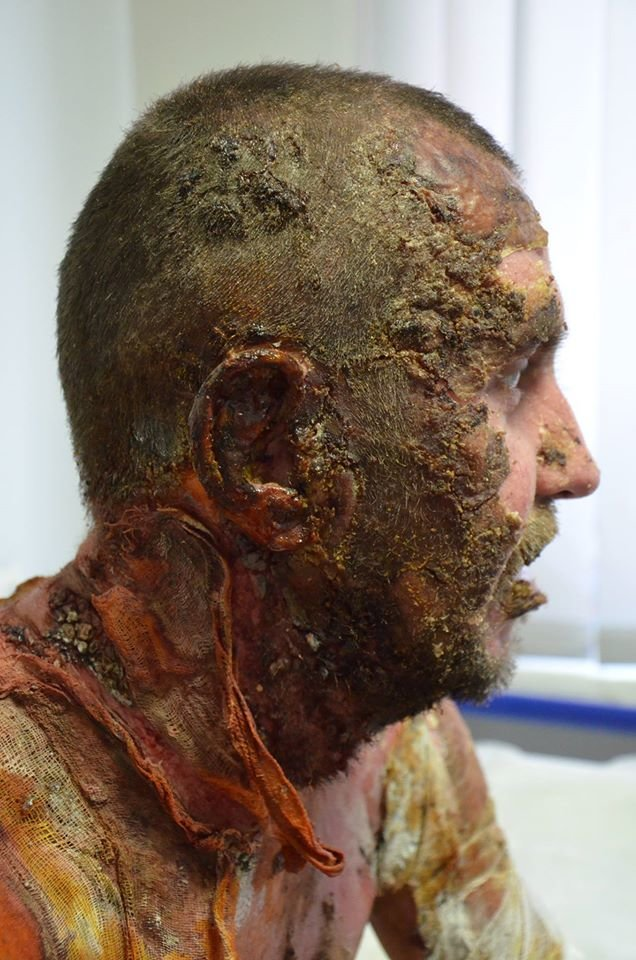 Обгоревший солдат 27-ого Сумского реактивного полка нуждается в помощи (ФОТО), фото-1