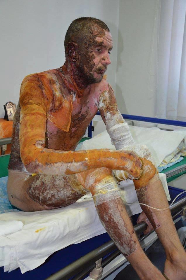 Обгоревший солдат 27-ого Сумского реактивного полка нуждается в помощи (ФОТО), фото-3