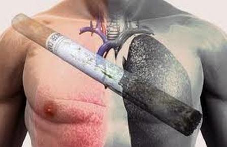 рак легких курение - Поиск в Google