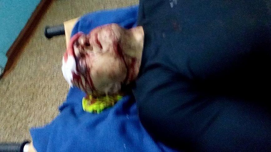 В центре Одессы жестоко избили предпринимателя: Гордиенко обещает жестоко отомстить (ФОТО) (фото) - фото 1