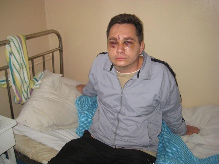 Чернівецькі міліціонери знайшли зловмисника, який у жовтні побив учасника АТО Олега Корабліна (фото) - фото 1