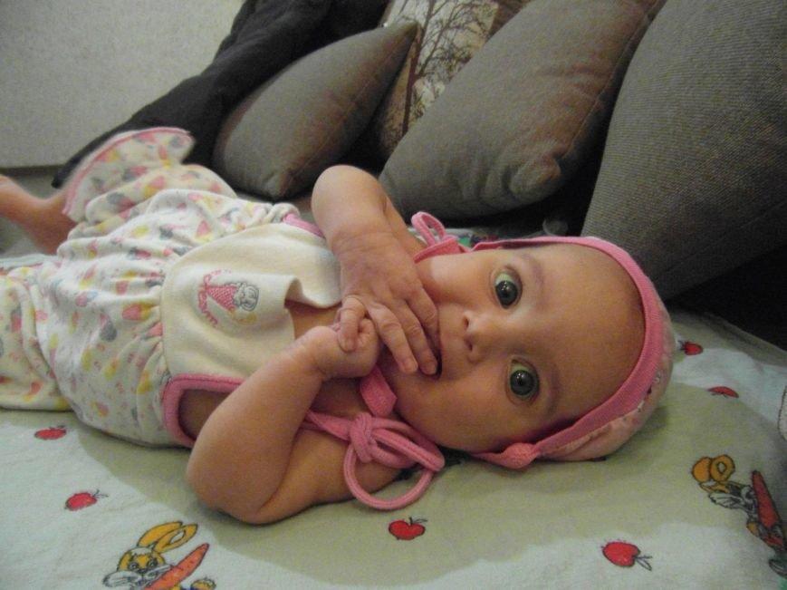 Малышке из Днепропетровска требуется хирургическая помощь за рубежом (фото) - фото 2