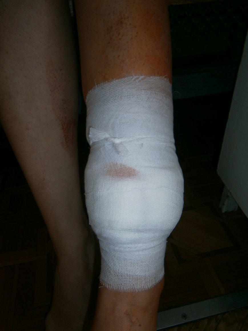 В Димитровской больнице с ранением находится переселенка из Авдеевки (фото) - фото 4