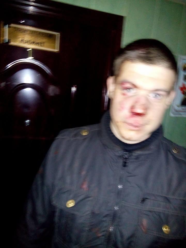 В Одессе грабители избили кастетами добровольца, который собирался в АТО (ФОТО) (фото) - фото 1