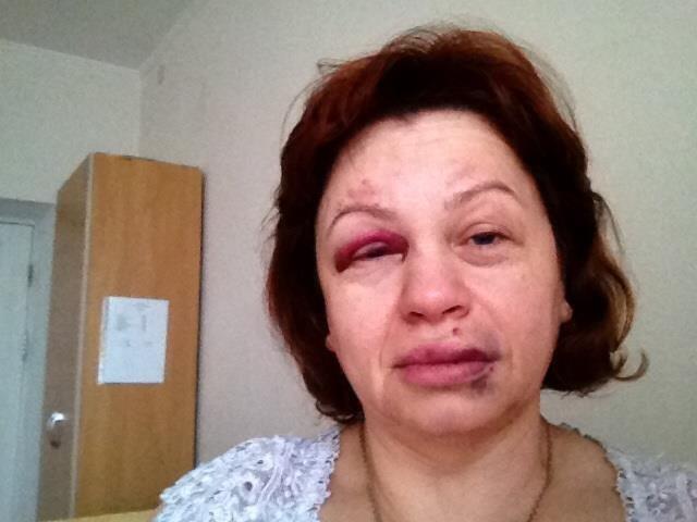 Ирина Туровская: «На меня напали и избили, чтобы запугать», фото-2