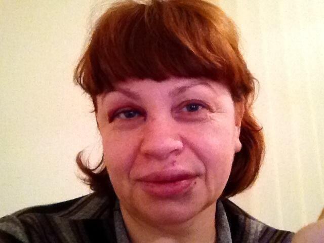 Ирина Туровская: «На меня напали и избили, чтобы запугать», фото-1