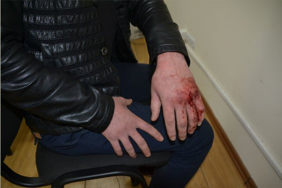 Кавказці, які до смерті побили львівського міліціонера, можуть сісти за грати на 10 років (ФОТОРЕПОРТАЖ) (фото) - фото 4