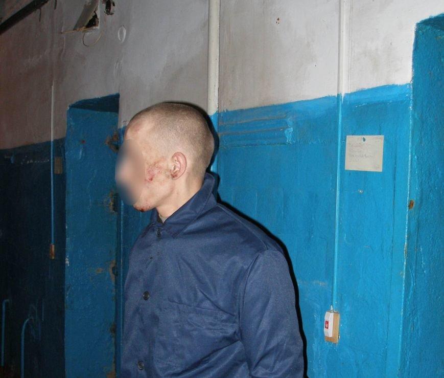 В одесском СИЗО пытали и жестоко избили заключенных (ФОТО) (фото) - фото 1
