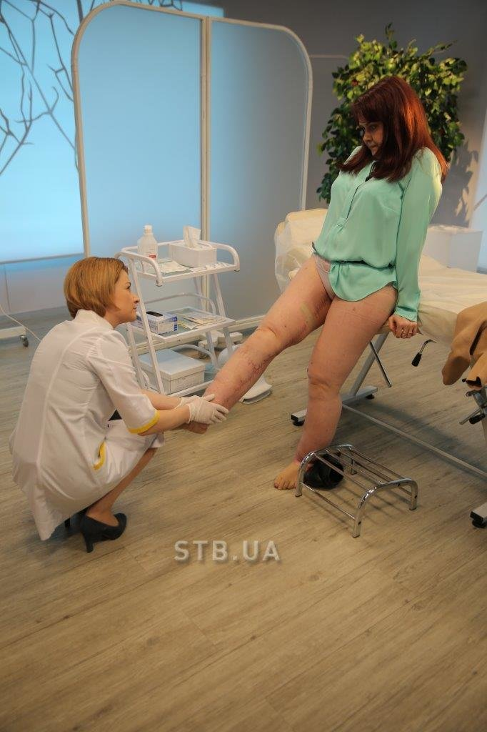 Сумчанка вернулась из Германии с новыми ногами (ФОТО+ВИДЕО) (фото) - фото 2