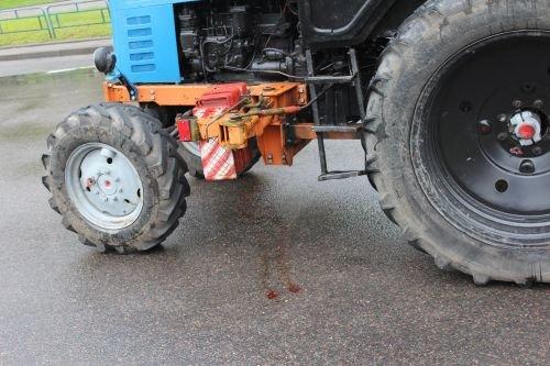 В Гродно трактор переехал двух девушек: с тяжелыми травмами пострадавшие госпитализированы (фото) - фото 4