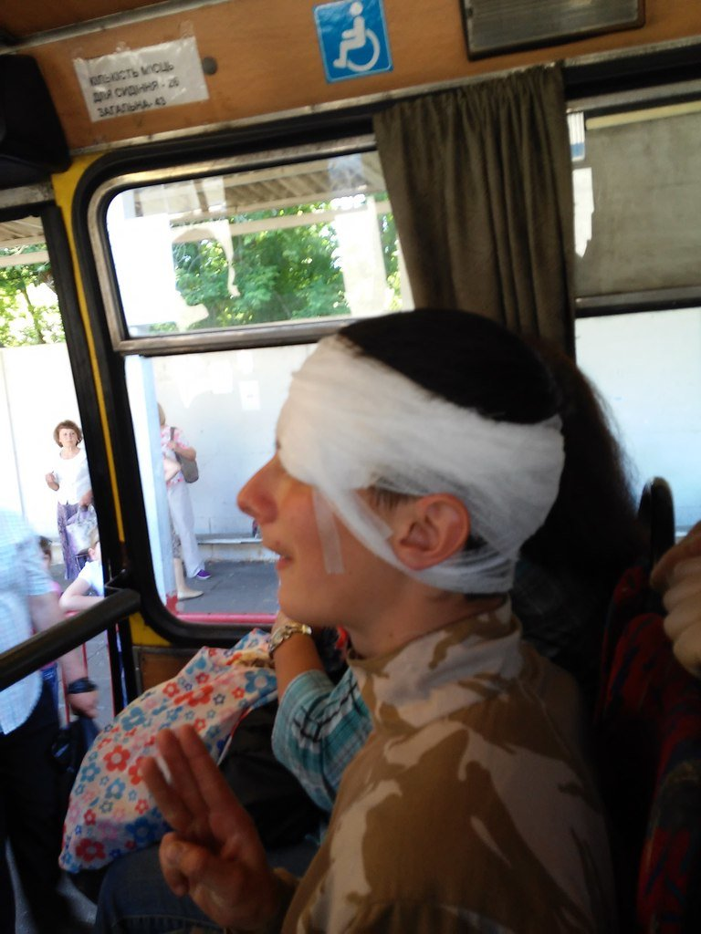 Запорожский националист пострадал в Киеве, протестуя против гей-парада (ФОТО) (фото) - фото 1