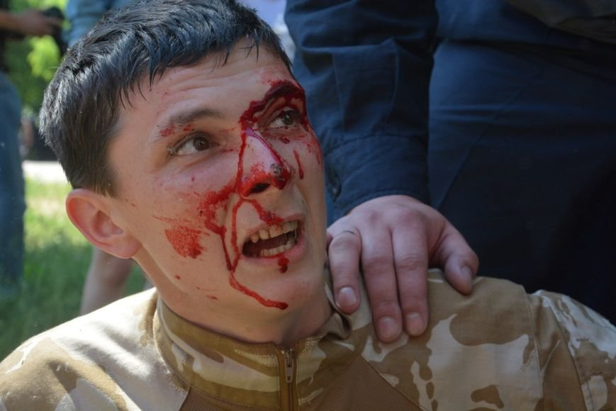 Запорожский националист пострадал в Киеве, протестуя против гей-парада (ФОТО) (фото) - фото 3