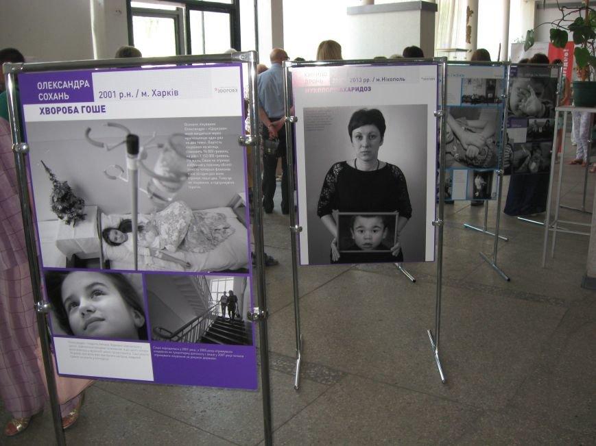 В Запорожье судьбы людей с редкими заболеваниями показали на фотовыставке (ФОТО) (фото) - фото 2